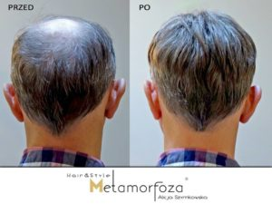 Zagęszczanie niechirurgiczne włosów Bielsko biała