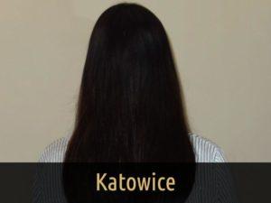 Metamorfoza Katowice