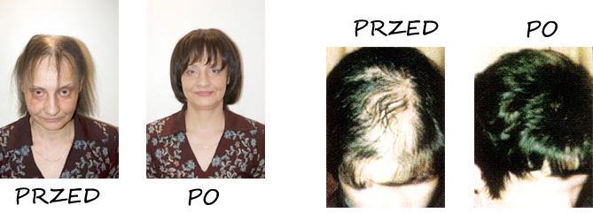 Niechirurgiczne uzupełnianie ubytków włosa